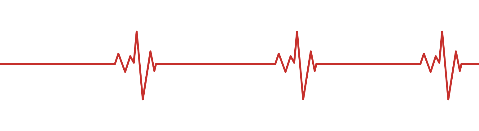 EKG clear